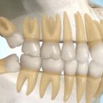 Mitos e verdades sobre o dente siso!